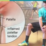My first running injury – Patella Tendinitis