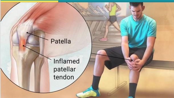 My first running injury – Patella Tendinitis